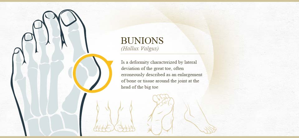 Bunions and Bunion Surgery in Las Vegas